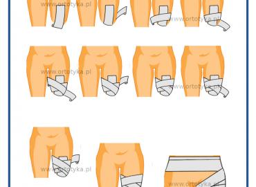 bandażowanie-uda-proteza-nogi-amputacja-jaki-bandaz-warszawa