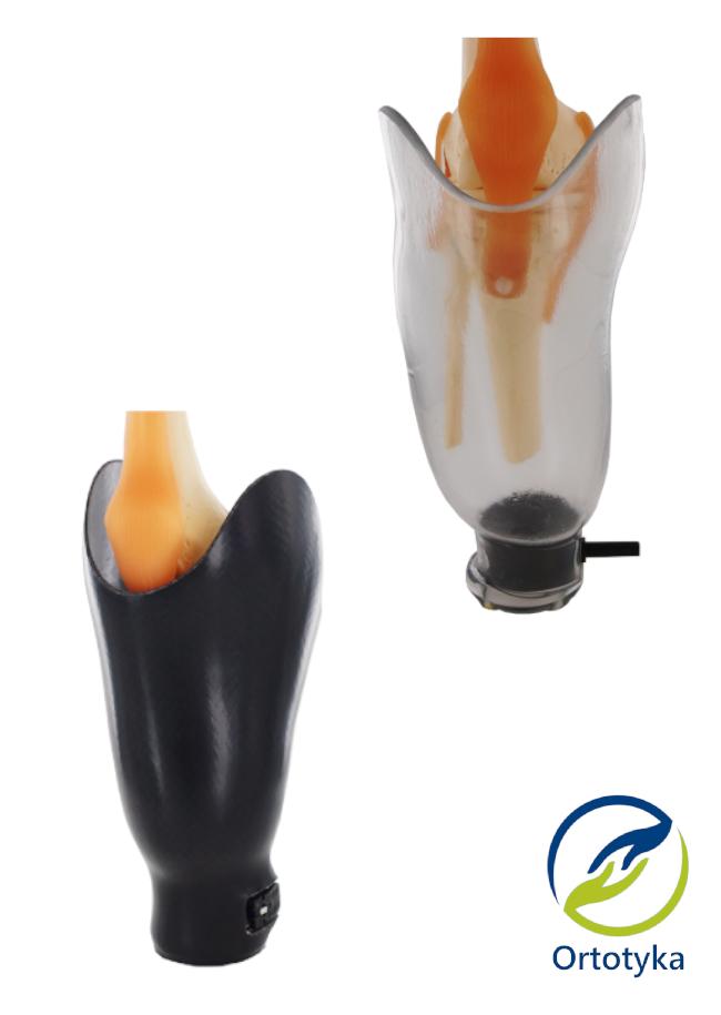 wymiana-leja-w-protezie-podudzia-uda