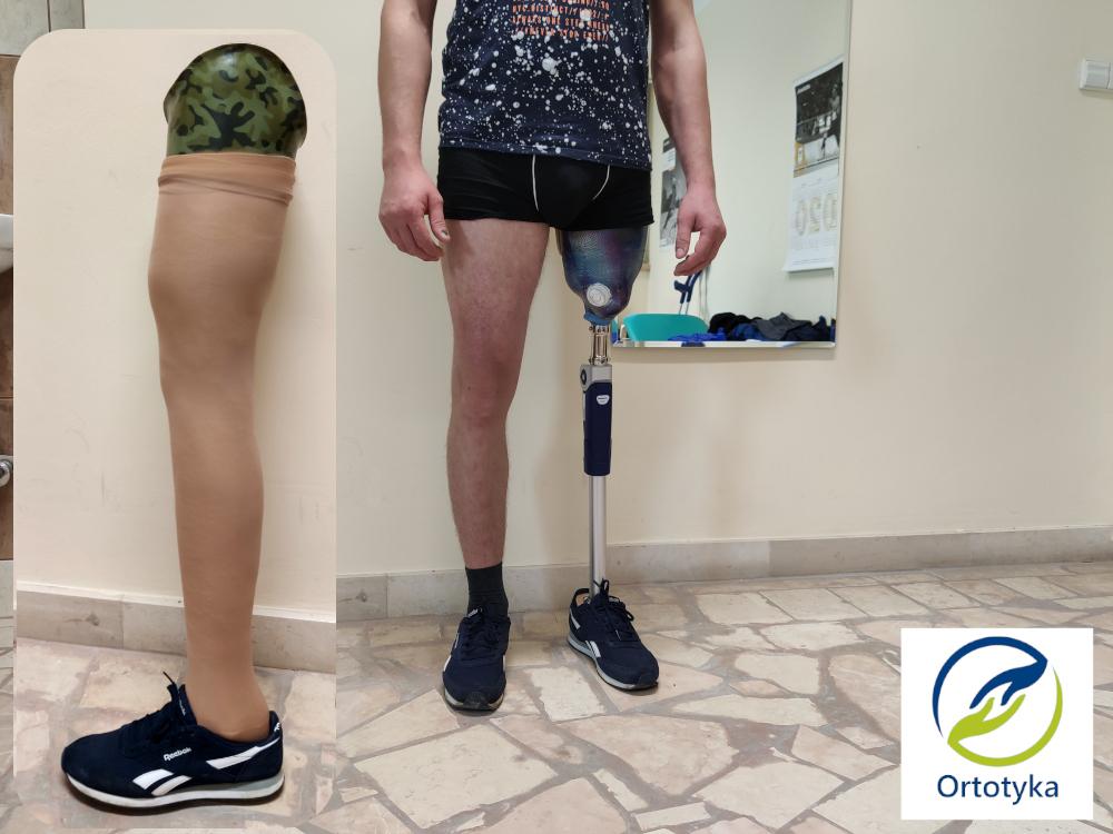 pokrycie-dobra-kosztuje-proteza-uda-otto-bock-kolano-3r92-pneumatyczne-kończyn-warszawa-konstancin-grodzisk