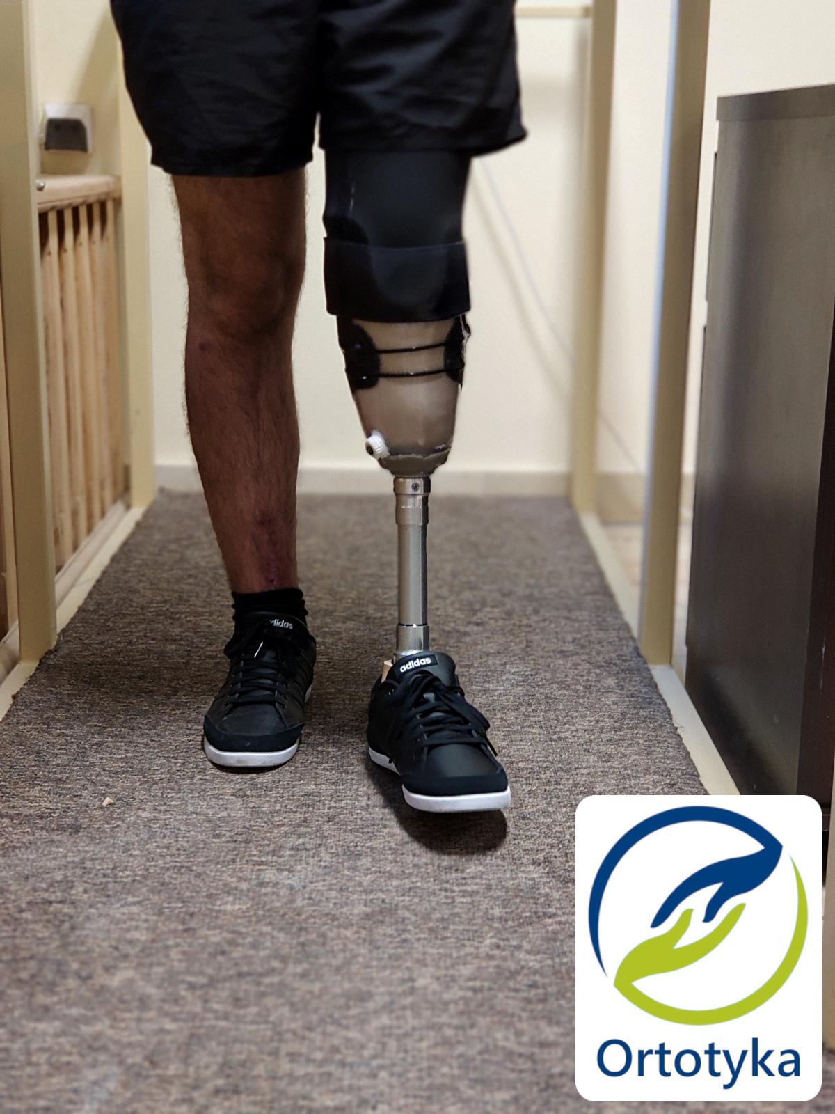 proteza-nogi-dofinansowanie