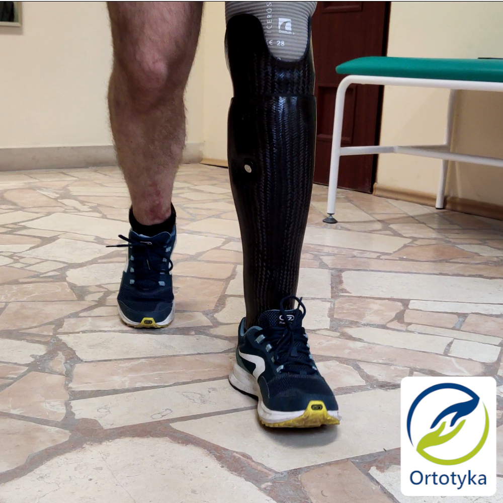 kończyn-obudowa-warszawa-proteza-podudzia-prosthesis-carbon-węglowa-nogi-pokrycie-cover-design