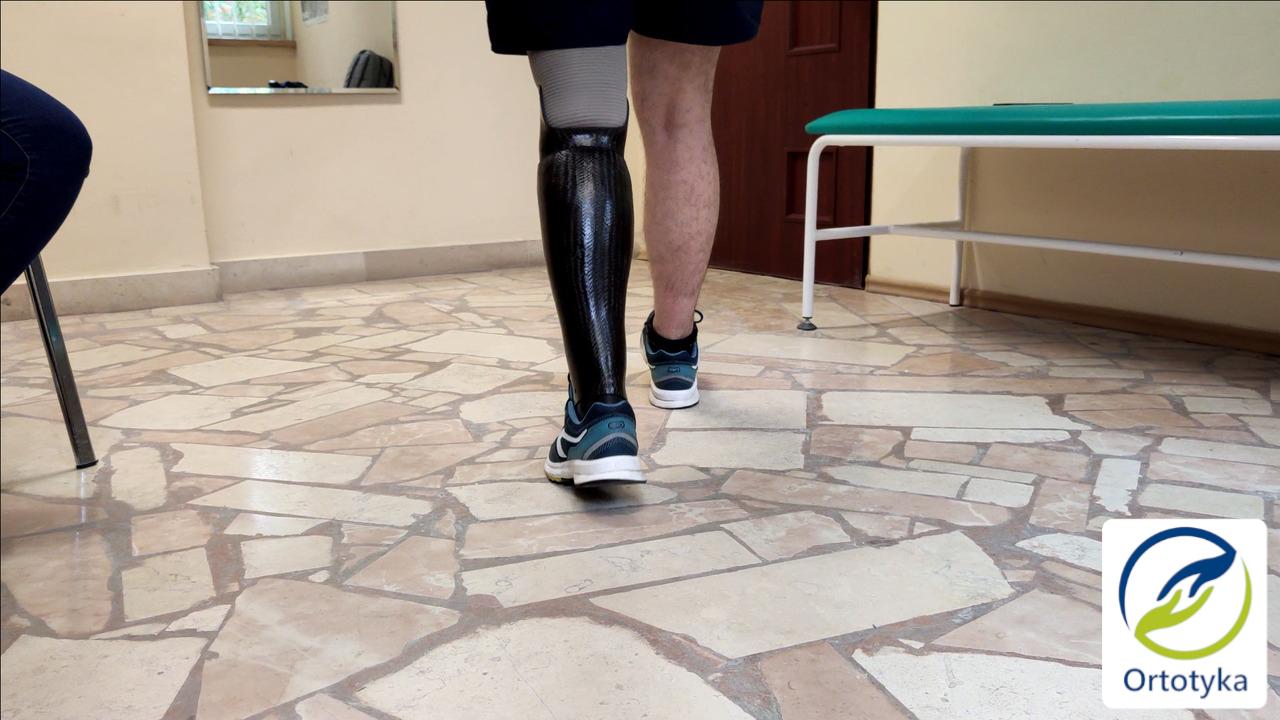 proteza-podudzia-prosthesis-carbon-węglowa-nogi-pokrycie-cover-design-obudowa