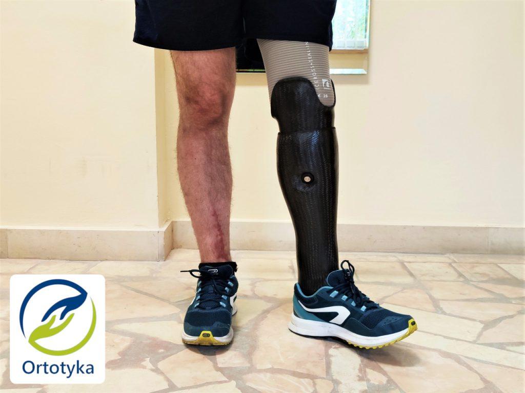 proteza-podudzia-prosthesis-carbon-węglowa-nogi-pokrycie-cover-design-warszawa-next-obudowa-cena