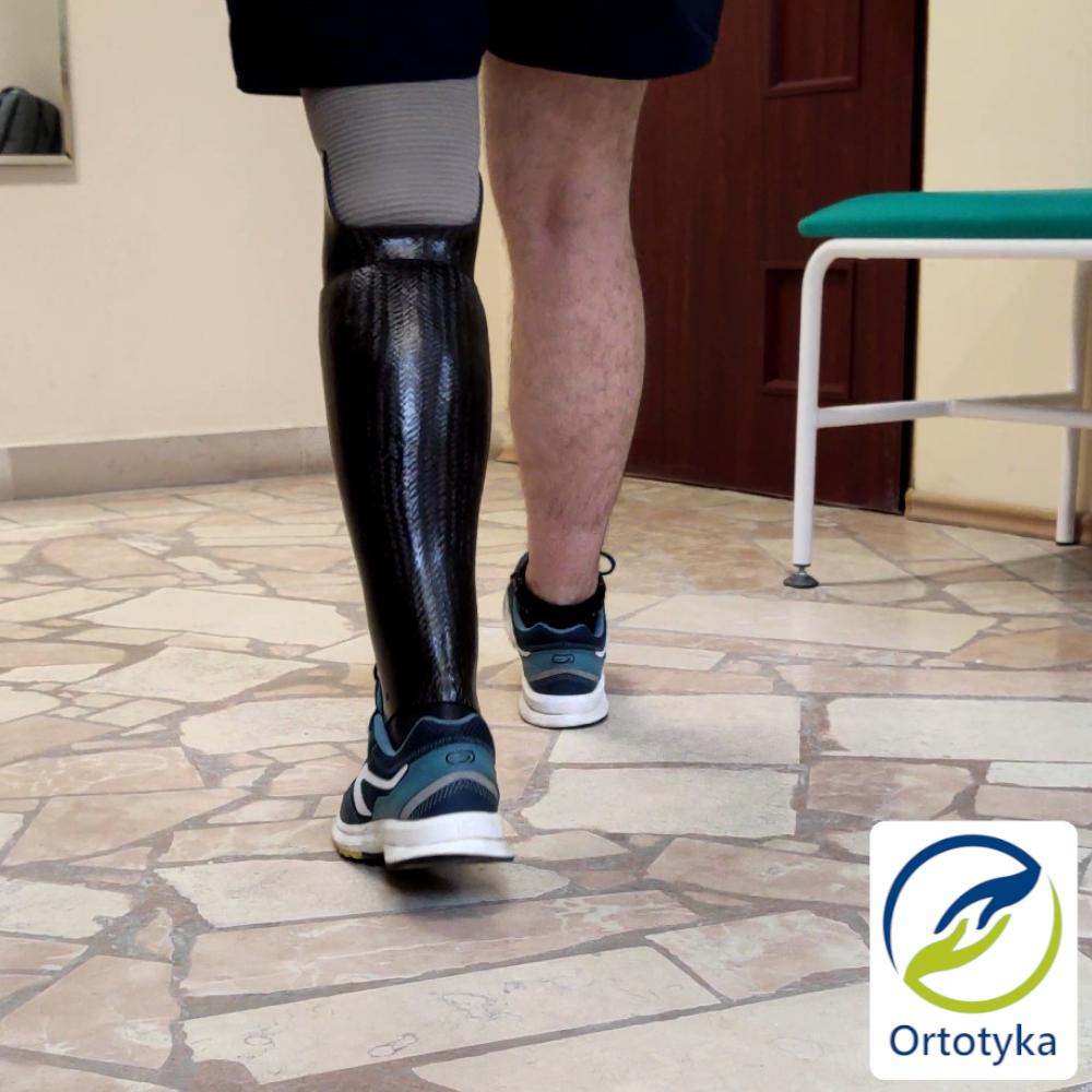 protezy-kończyn-proteza-obudowa-czarna-kosmetyczne-podudzia-prosthesis-carbon-węglowa-nogi-pokrycie-cover-design-łydka-transtibial-warszawa-ortotyka_Easy-Resize.com